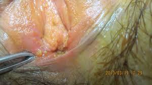Pengobatan Penyakit Kondiloma Akuminata