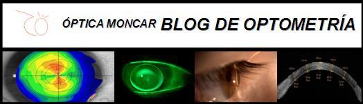Blog de Optometría - Óptica Moncar - Lanzarote