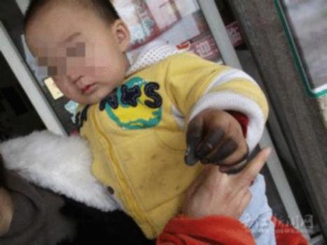 Exploding Coins Cause Burns on Chinese Baby's Hands