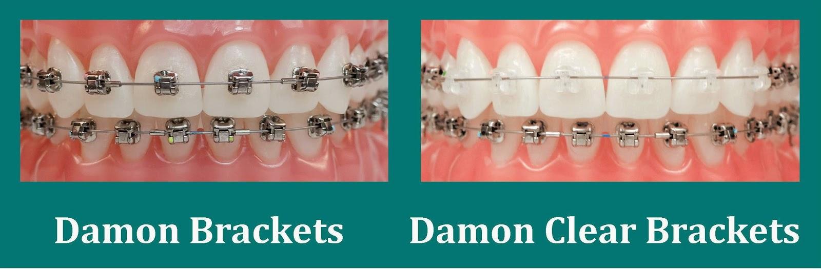 Damon metal braces and Damon clear braces