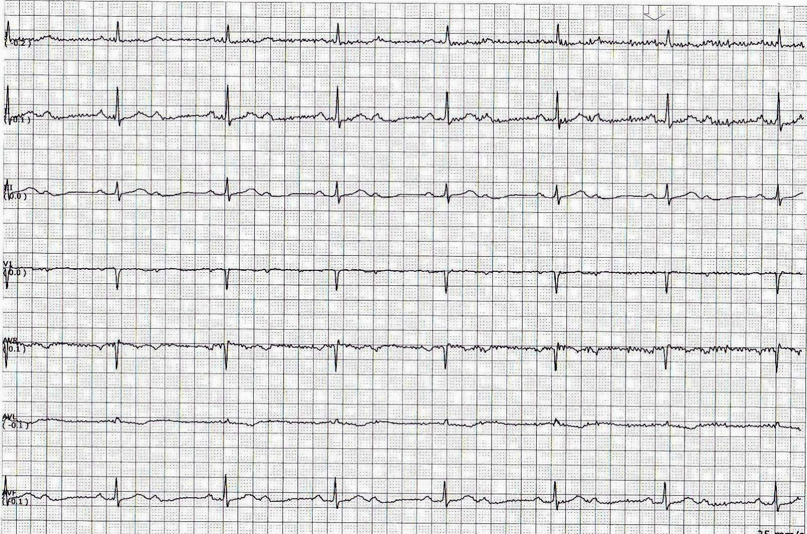 ecg rhythms av block a subtype of second degree av block 2 1 av block a subtype of second degree av block