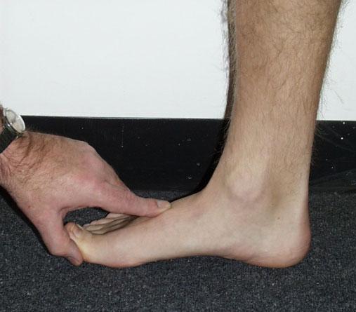 Чем лечить воспаление на ноге в домашних условиях 106