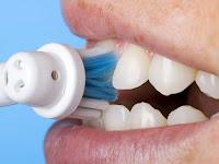 Cara Membersihkan Karang Gigi Secara Tradisional