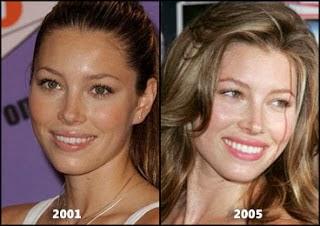 jessica biel plastic surgery nose job and lips