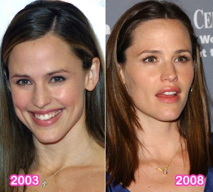 What do you think? Did Jennifer Garner have plastic surgery ?