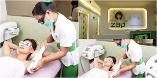 Cara melakukan treatment ZAP