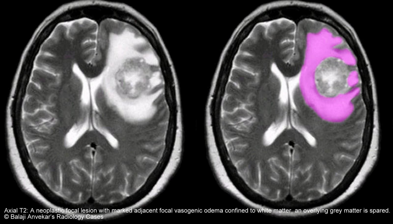Best brain pills 2017 image 1