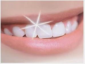 Tips Mudah Menghilangkan Karang Gigi Tanpa harus Ke Dokter