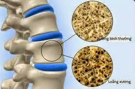 Mười dấu hiệu nhận biết cơ thể thiếu canxi www.c10mt.com