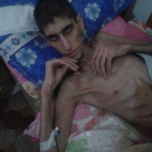 Kondisi Muslim Suriah yang Dikepung Rezim Syiah Assad