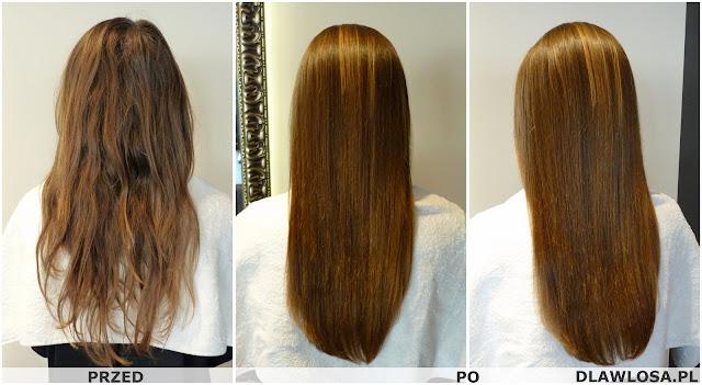 zabieg na włosy - trycholog waraszawa