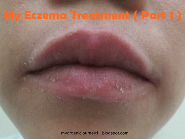 Eczema On Lips Natural Treatment