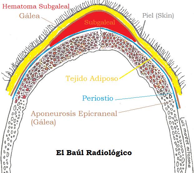 El Baúl Radiológico: 2) HEMATOMA SUBGALEAL: HALLAZGOS EN TOMOGRAFÍA ...