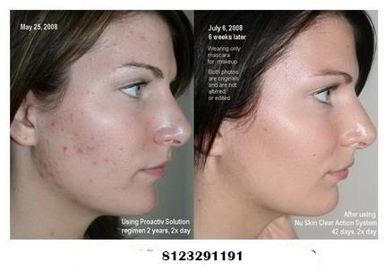 Nac skin whitening