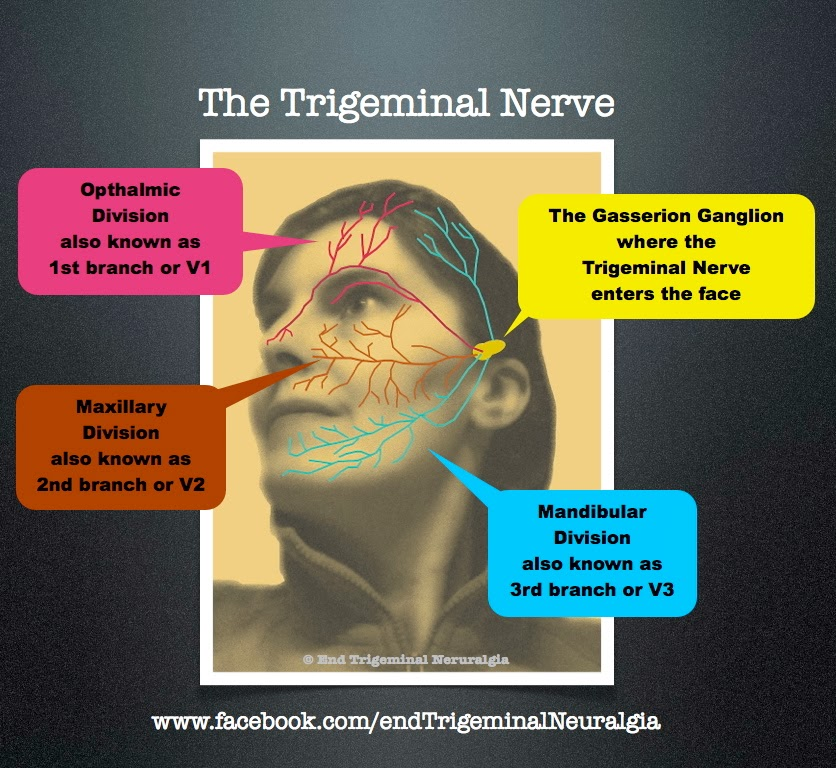 facial nerve impingement
