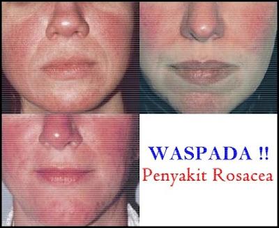 Obat Herbal Rosacea