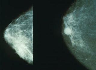Image of a healthy and a cancerous breast (mammogram)