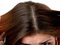 5 Cara Menghilangkan Kutu Rambut dan Cara Mencegahnya