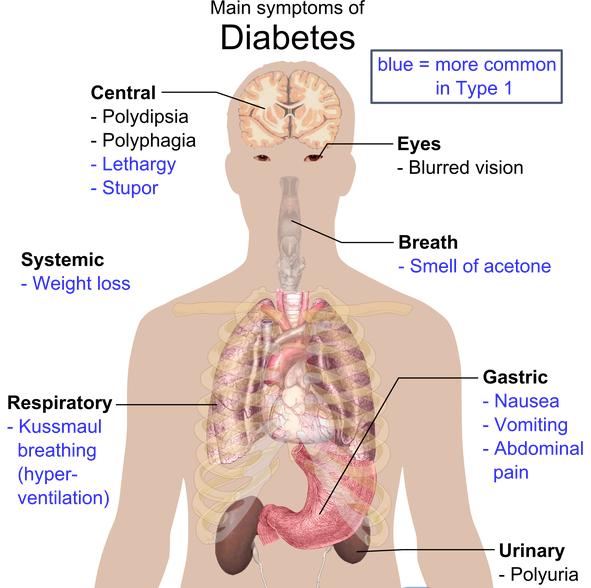 gewichtsverlust symptom