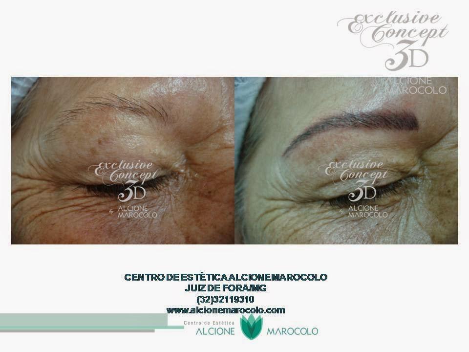 A pigmentação datilografa na pele
