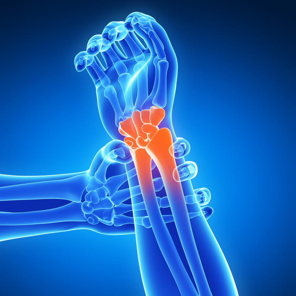 5 Easy Ways to Prevent Joint Pain pictures