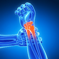 Wrist Pain Prevention