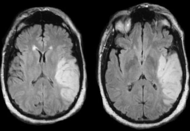 Neuroradiology Cases: Ischemic stroke and Vascular territories of ...