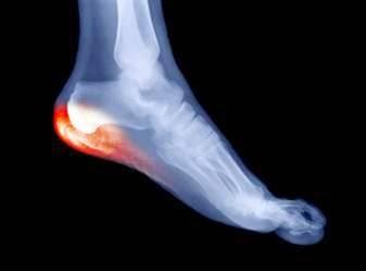 Cabinet orthop dique orth siles martinique octobre 2014 for Douleur interieur du pied