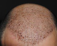 Hair transplant India Kolkata: best results by Dr. Srinjoy Saha