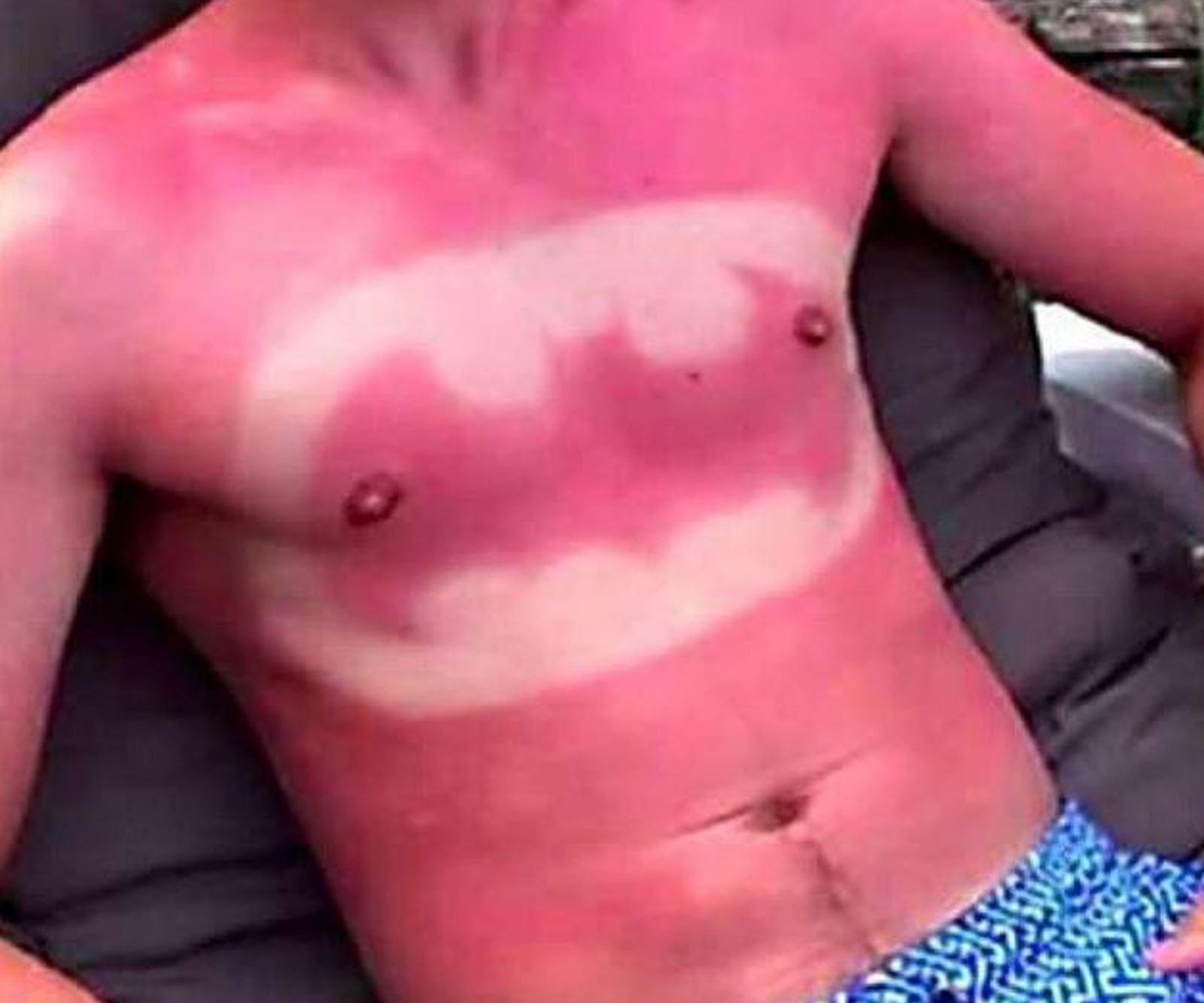 how to make sunburn go away