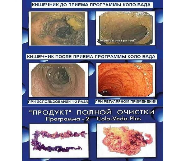 очистка кишечника от паразитов касторовым маслом