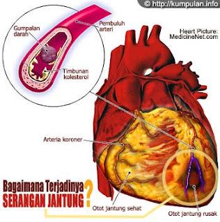 jantung, penyakit jantung, sakit jantung, cara mengobati sakit jantung,cara mengobati penyakit jantung, gambar jantung, serangan jantung