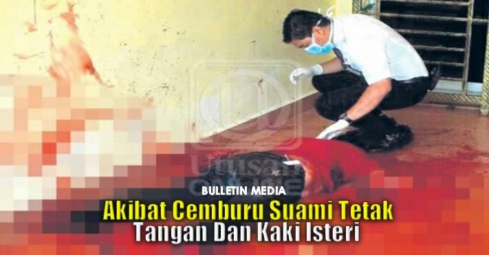 Suami tetak kaki dan tangan isteri akibat cemburu - Polis