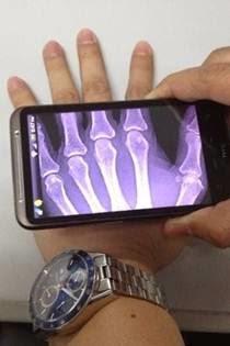 Aplikasi kamera tembus pandang android