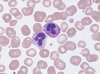 VETERINARY HEMATOLOGY DEXTERVET: neutrophils with toxic ... Vacuolization Of Neutrophils