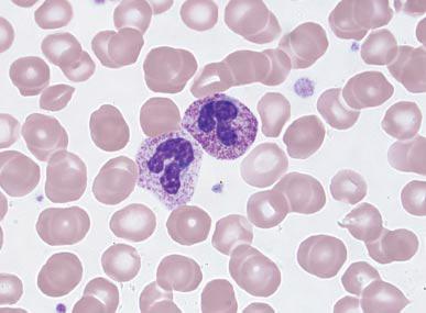 Toxic Granulation And Vacuoles | www.pixshark.com - Images ... Vacuolization Of Neutrophils