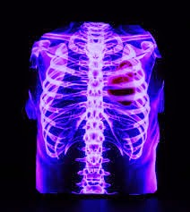 Ribcage Stock Photos Images. 8,610 Royalty Free Ribcage Images And ...