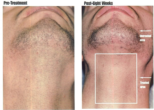 Permanent Laser Hair Removal System
