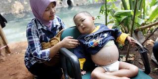 Obat Ginjal Bocor Untuk Anak