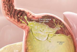 Heartburn Coronary Heart