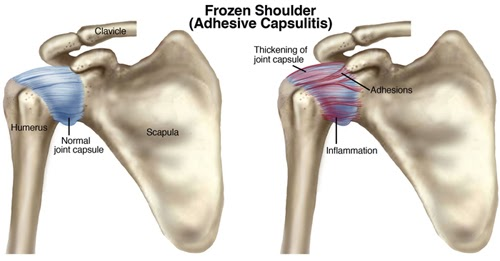 Progressive Physical Therapy, Inc.: Frozen Shoulder