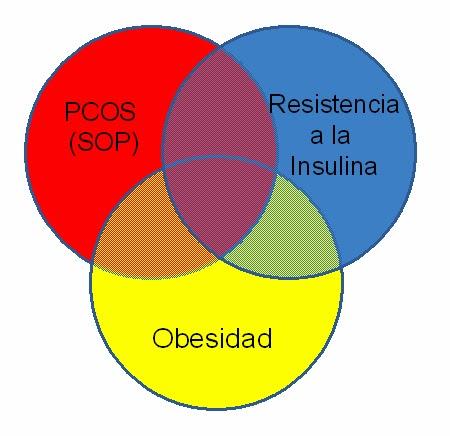 Estrecha asociación entre la obesidad, la resistencia a la insulina y el síndrome del ovario poliquístico