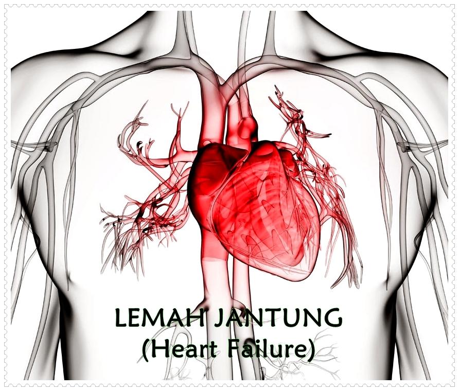 Obat Tradisional Lemah Jantung Yang Cepat Dan Aman