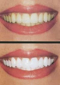 Tips Memutihkan Gigi Kuning Secara Alami Dan Cepat