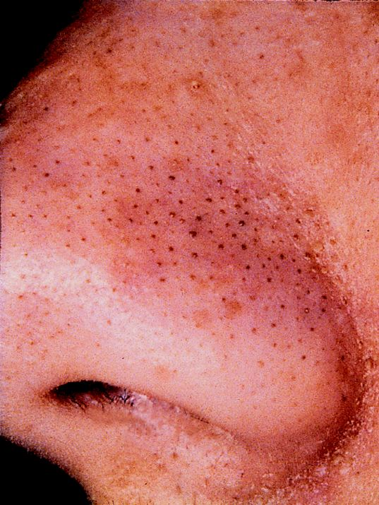 how to get rid of blackheads on your body