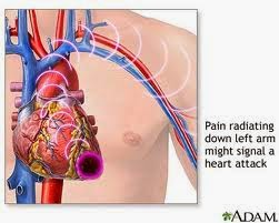 Heart Attack   What is heart attack?  Occurs when blood supply to vital organs gets blocked  >50years / menopausal women at greater risk  Occurs with / without chest pain  Sudden arrest of breathing / heart function  May result in cardiopulmonary arrest  Clot in the arteries blocks blood supply  Occurs due to: a. Deposits of calcium / cholesterol b. Hereditary factors c. Tobaccos.  Obesity. High blood pressure. Emotional stress. Inflammatory disease of arteries. Trauma / disease of heart   Symptoms   Chest pain   Shoulder/arm pain   Shortness of breath   Sweating   Heartburn   Nausea   Abdominal pain   First aid   Try to relax   Loosen tight clothes   Take medicines if any   Pain subsides within 3 min of medicine intake   If not, see a doctor.   Give artificial respiration if required   Give Cardiopulmonary Resuscitation (CPR) :a. If no pulse is detected. By placing  palm on chest to pump   15 pumps are followed by 2 artificial respiration   Continue till ambulance / doctor arrives   Prevention   Routine health check-up   Avoid stress   Quit smoking / alcohol   Eat sensibly   Control blood pressure / diabetes   Control weight         ==--==