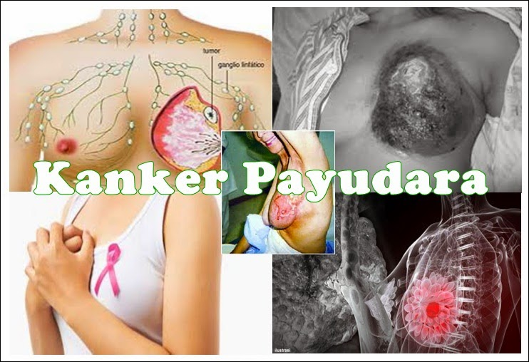 10 Kekeliruan Tentang Kanker Payudara