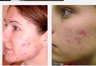 L'acné solution et traitement