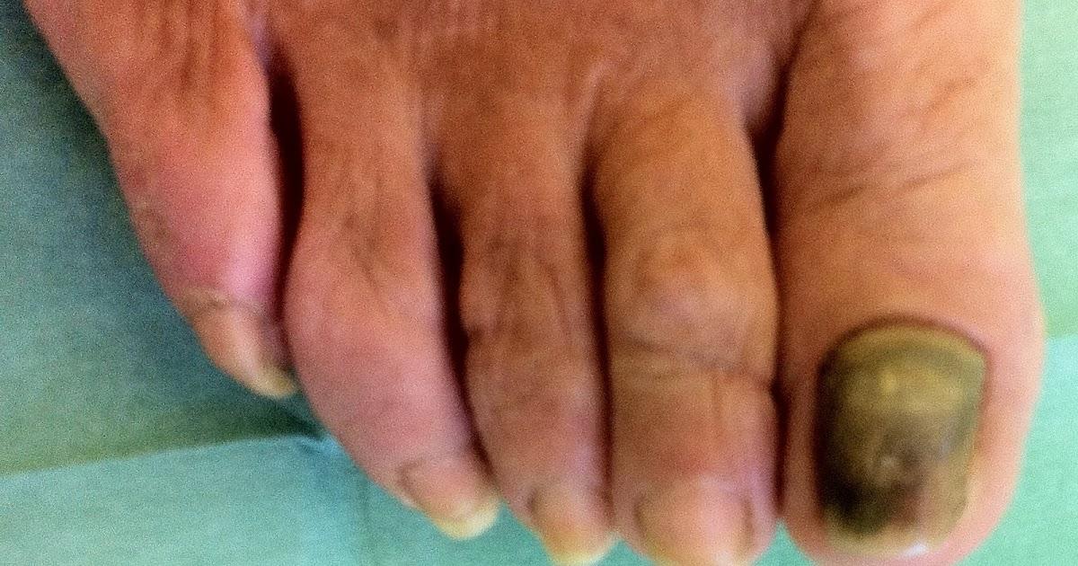 Come guarire la psoriasi sotto unghie