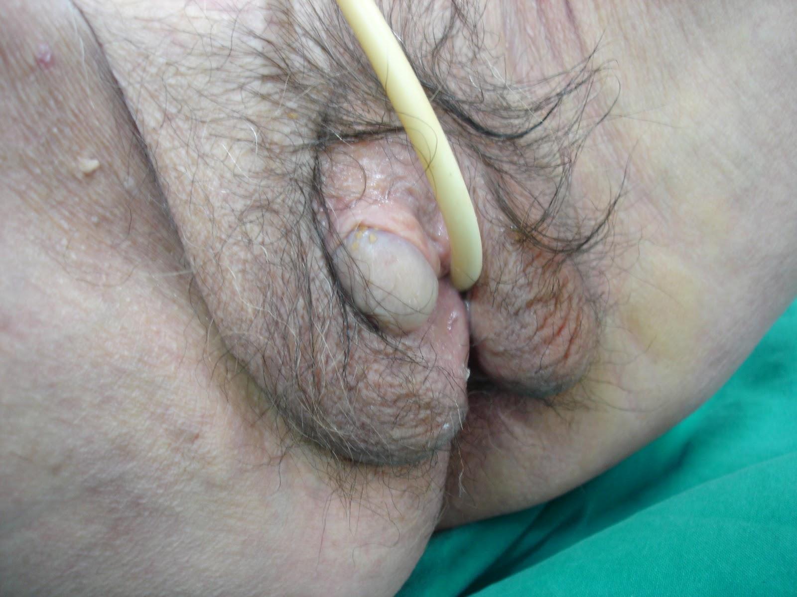 Фото гениталий двухполого человека 8 фотография